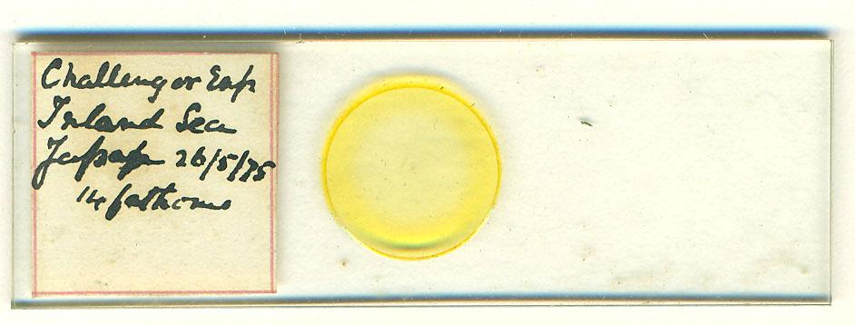 Diatoms (Bacillariophyceae)